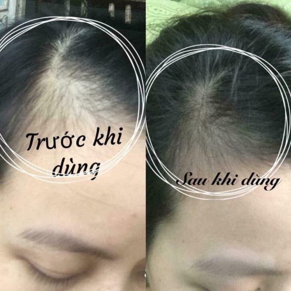 Viên uống mọc tóc hairburst healthy hair vitamins reviews có tốt ko?