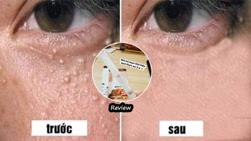Review kem trị mụn thịt tsubuporon có thực sự tốt không