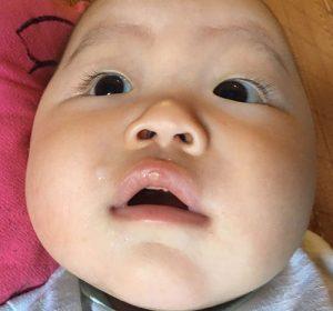 Mách mẹ cách trị khò khè cho trẻ sơ sinh hiệu quả, ít ai biết